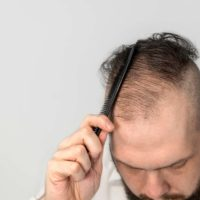How to Embrace Hair Loss
